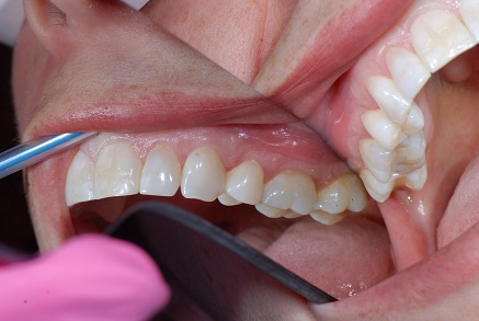 Example 6 after gum treatment