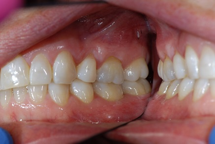 Example 6 before gum treatment