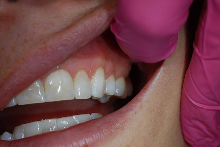 Example 7 after gum treatment