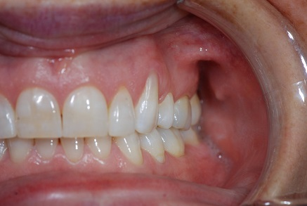 Example 7 before gum treatment