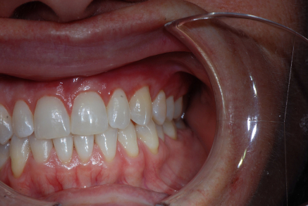 Example 8 after gum treatment